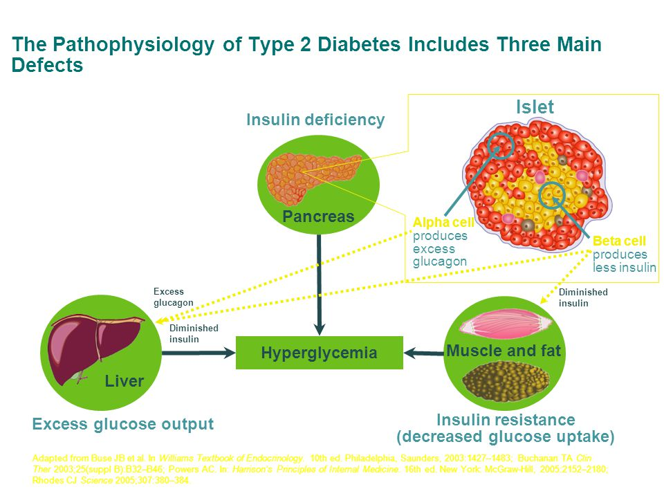 Adapted from Buse JB et al.In Williams Textbook of Endocrinology.