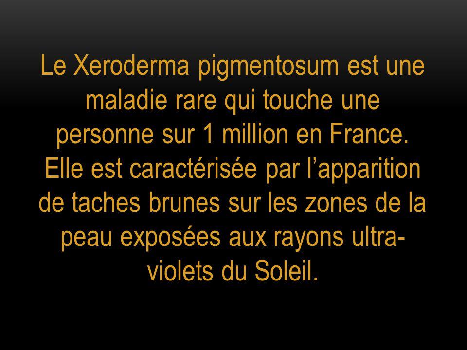 Le Xeroderma pigmentosum est une maladie rare qui touche une personne sur 1 million en France. Elle est caractérisée par l'apparition de taches brunes
