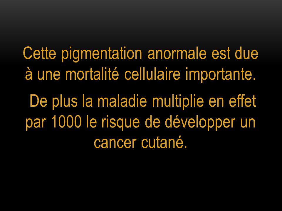 Cette pigmentation anormale est due à une mortalité cellulaire importante. De plus la maladie multiplie en effet par 1000 le risque de développer un c