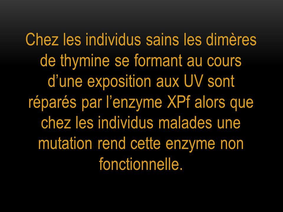 Chez les individus sains les dimères de thymine se formant au cours d'une exposition aux UV sont réparés par l'enzyme XPf alors que chez les individus