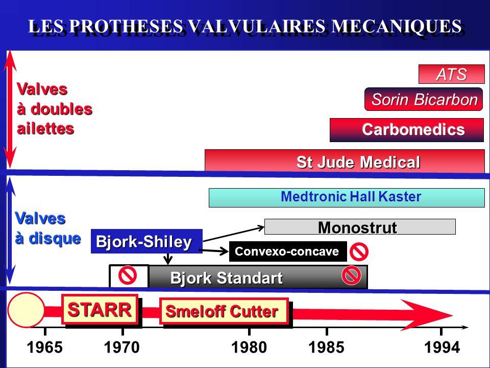 LES PROTHESES VALVULAIRES MECANIQUES 19651994198019701985 Bjork Standart Convexo-concave Monostrut Medtronic Hall Kaster St Jude Medical Bjork-Shiley
