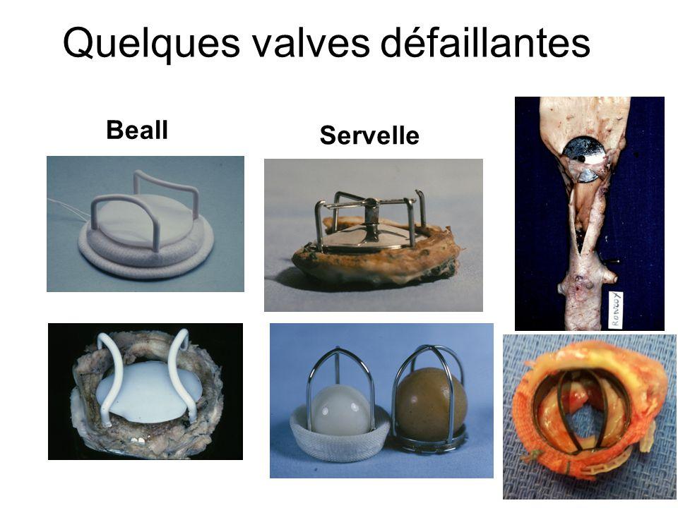 Quelques valves défaillantes Beall Servelle