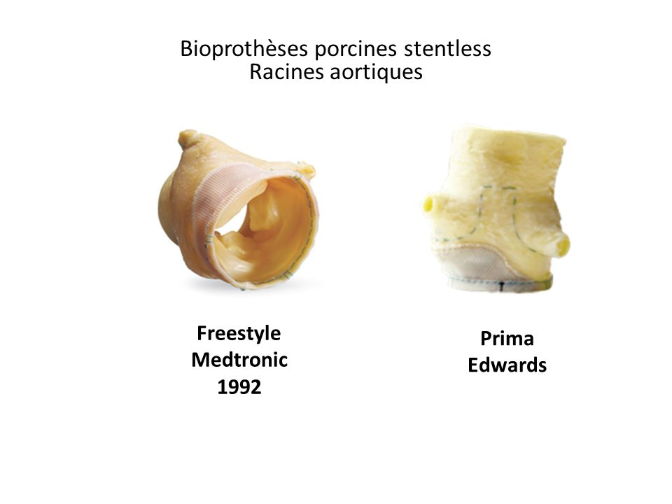 Bioprothèses porcines stentless Racines aortiques Freestyle Medtronic 1992 Prima Edwards