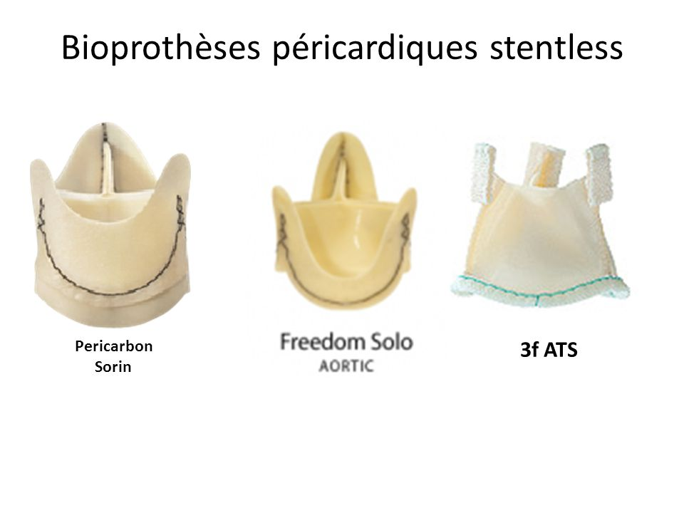 Bioprothèses péricardiques stentless 3f ATS Pericarbon Sorin