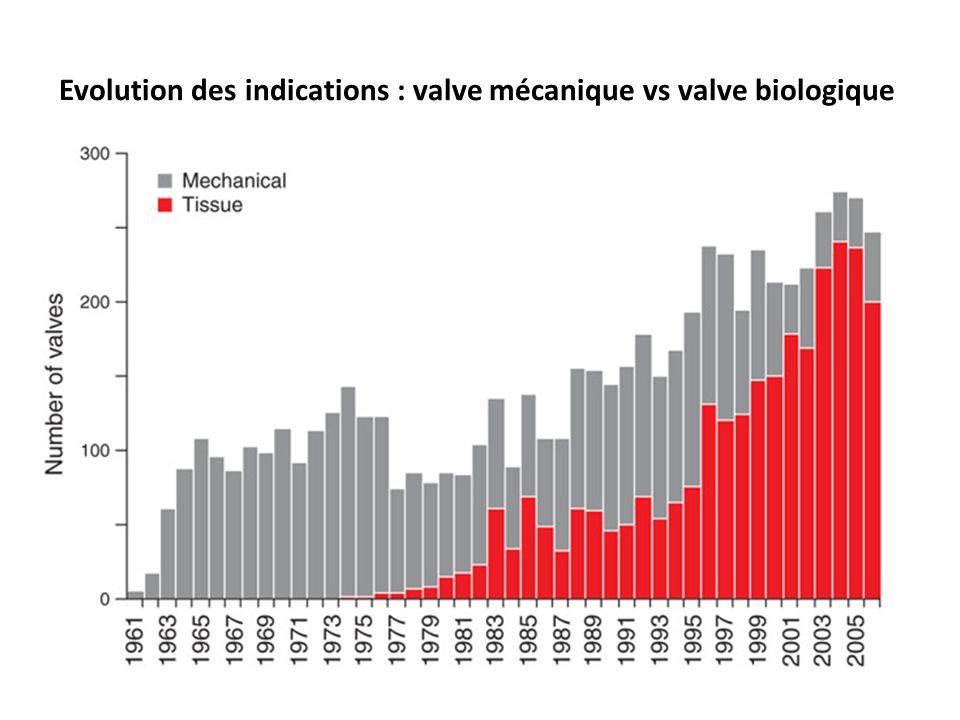 Evolution des indications : valve mécanique vs valve biologique