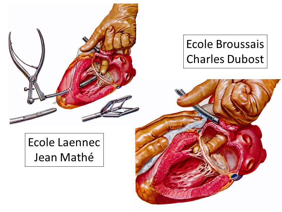 Ecole Broussais Charles Dubost Ecole Laennec Jean Mathé
