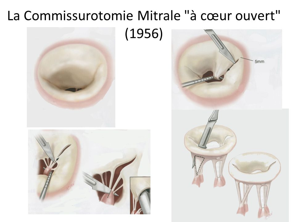 La Commissurotomie Mitrale