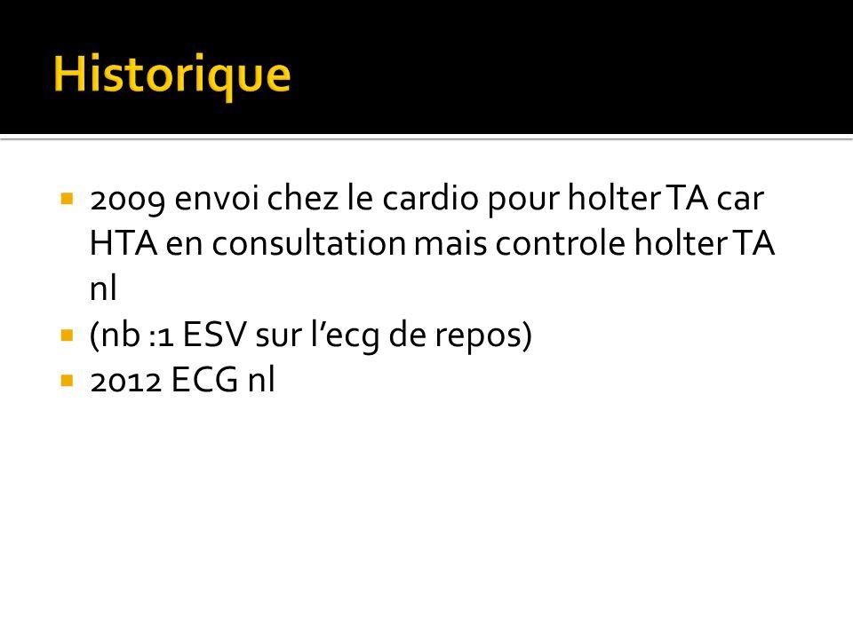  2009 envoi chez le cardio pour holter TA car HTA en consultation mais controle holter TA nl  (nb :1 ESV sur l'ecg de repos)  2012 ECG nl