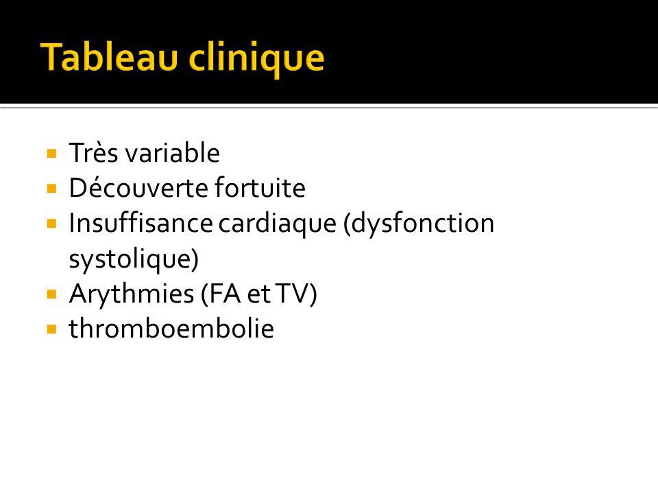  Très variable  Découverte fortuite  Insuffisance cardiaque (dysfonction systolique)  Arythmies (FA et TV)  thromboembolie