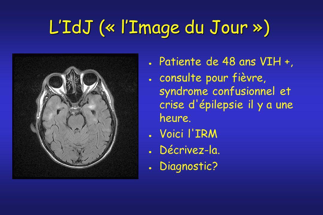 ● Patiente de 48 ans VIH +, ● consulte pour fièvre, syndrome confusionnel et crise d'épilepsie il y a une heure. ● Voici l'IRM ● Décrivez-la. ● Diagno