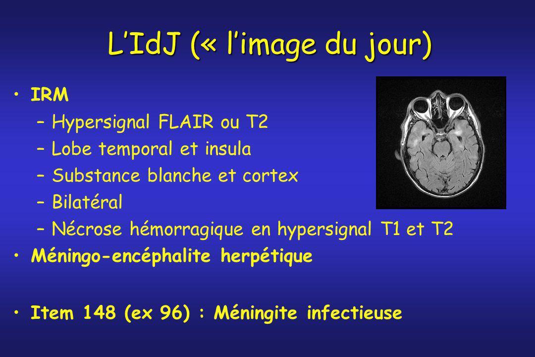 L'IdJ (« l'image du jour) IRM –Hypersignal FLAIR ou T2 –Lobe temporal et insula –Substance blanche et cortex –Bilatéral –Nécrose hémorragique en hyper