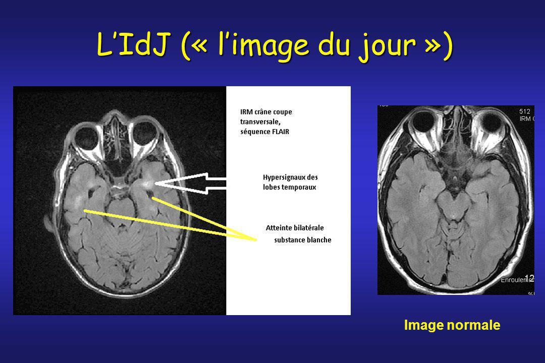 Image normale L'IdJ (« l'image du jour »)