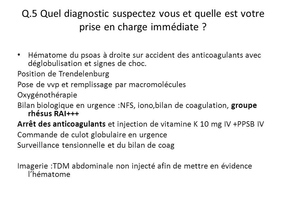 Q.5 Quel diagnostic suspectez vous et quelle est votre prise en charge immédiate ? Hématome du psoas à droite sur accident des anticoagulants avec dég