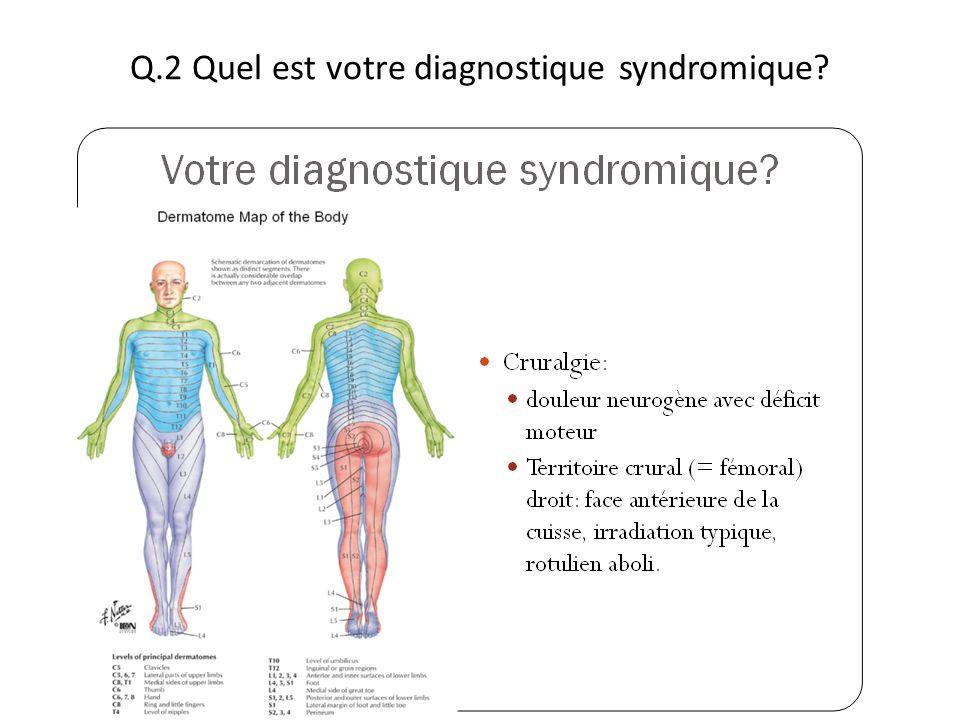 Q.2 Quel est votre diagnostique syndromique?
