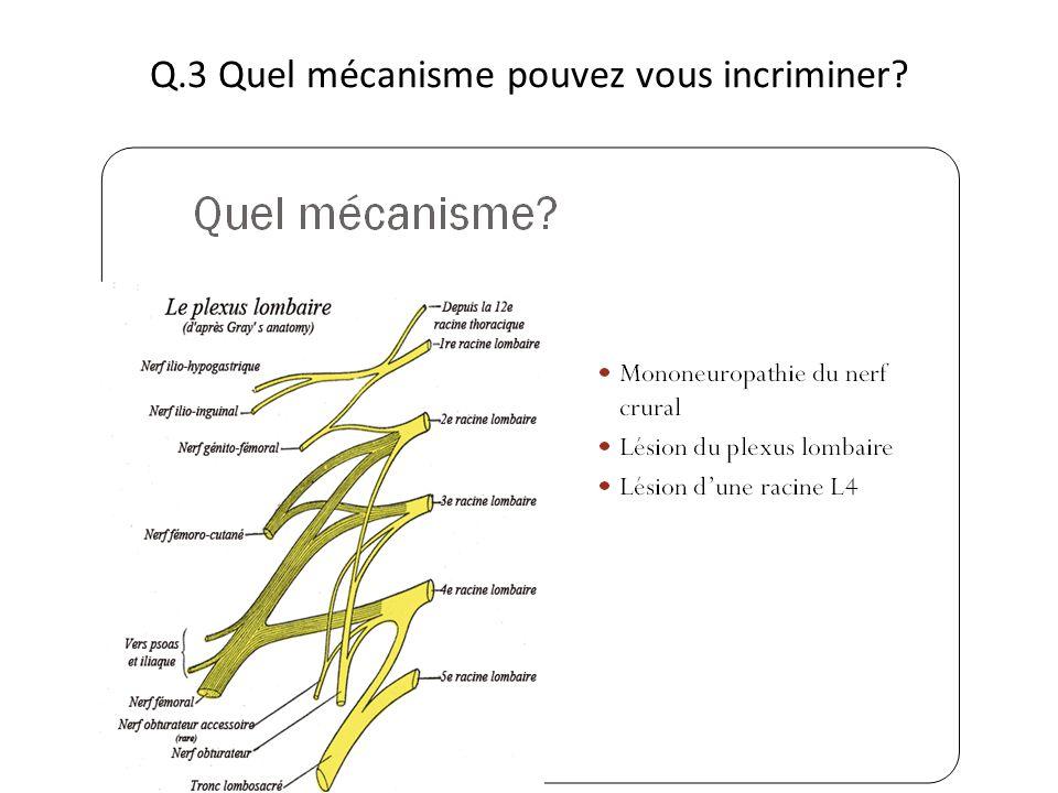 Q.3 Quel mécanisme pouvez vous incriminer?
