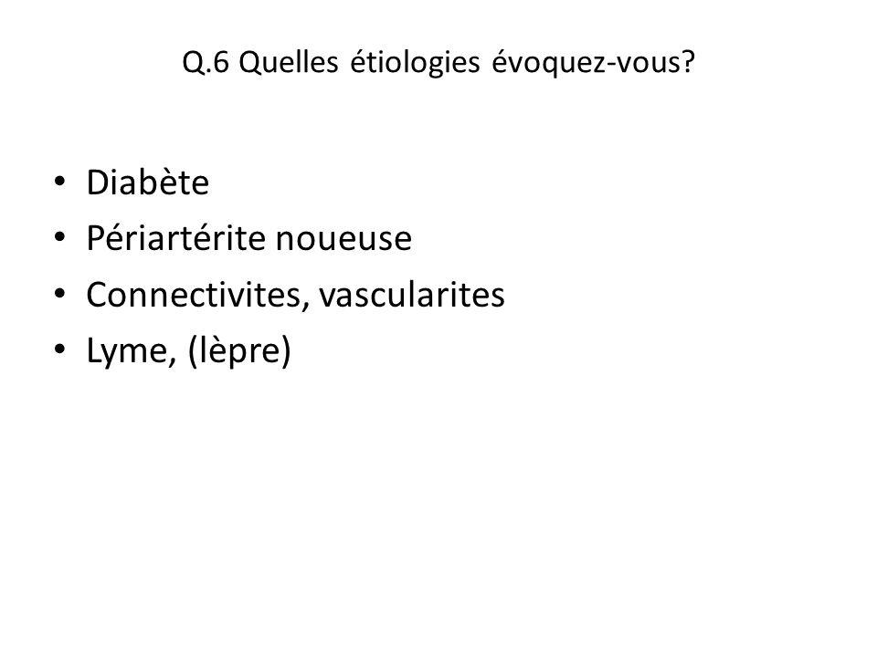 Q.6 Quelles étiologies évoquez-vous? Diabète Périartérite noueuse Connectivites, vascularites Lyme, (lèpre)