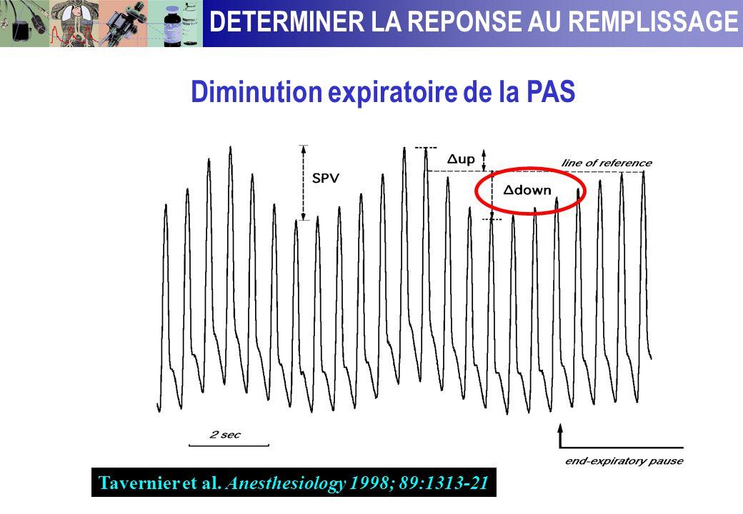 Comment prédire la réponse au remplissage ? En analysant les variations respiratoires du volume d'éjection VG chez les patients sédatés et ventilés Le