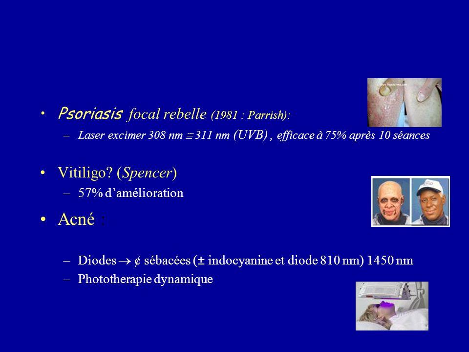 Psoriasis focal rebelle (1981 : Parrish): –Laser excimer 308 nm  311 nm (UVB), efficace à 75% après 10 séances Vitiligo? (Spencer) –57% d'amélioratio