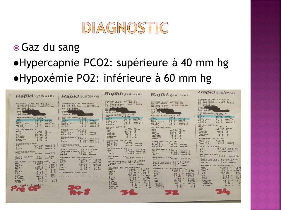  Gaz du sang ●Hypercapnie PCO2: supérieure à 40 mm hg ●Hypoxémie PO2: inférieure à 60 mm hg