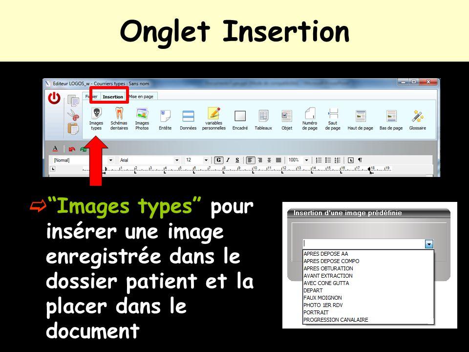 """Onglet Insertion  """"Images types"""" pour insérer une image enregistrée dans le dossier patient et la placer dans le document"""