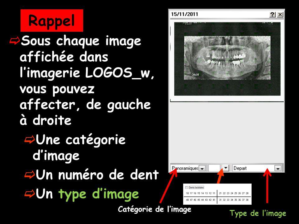  Sous chaque image affichée dans l'imagerie LOGOS_w, vous pouvez affecter, de gauche à droite  Une catégorie d'image  Un numéro de dent  Un type d