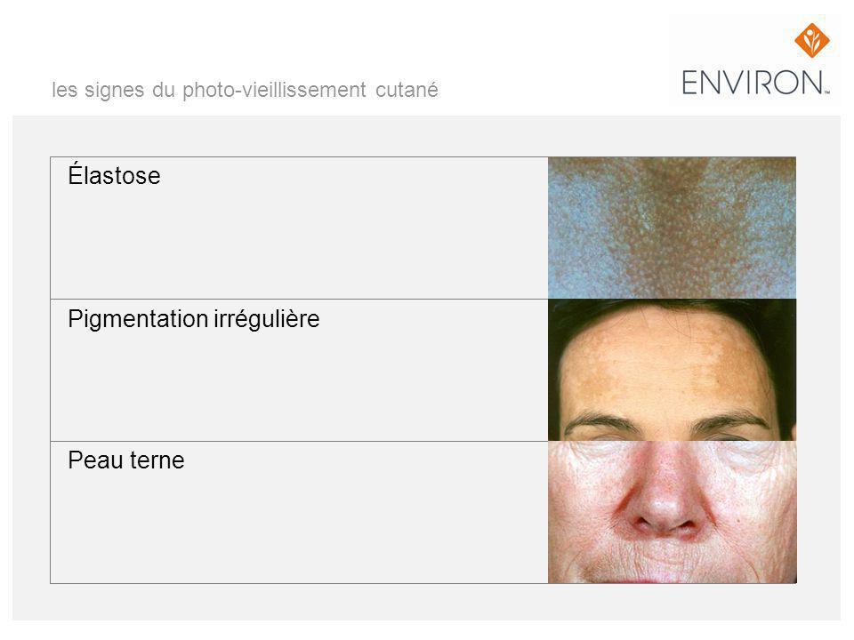 les signes du photo-vieillissement cutané Élastose Pigmentation irrégulière Peau terne