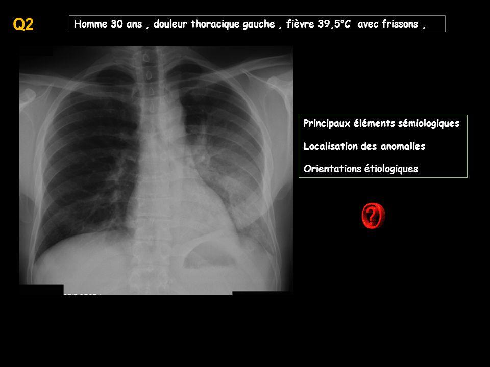 Homme 30 ans, douleur thoracique gauche, fièvre 39,5°C avec frissons, Principaux éléments sémiologiques Localisation des anomalies Orientations étiologiques Q2