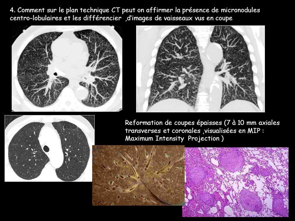 4. Comment sur le plan technique CT peut on affirmer la présence de micronodules centro-lobulaires et les différencier,d'images de vaisseaux vus en co