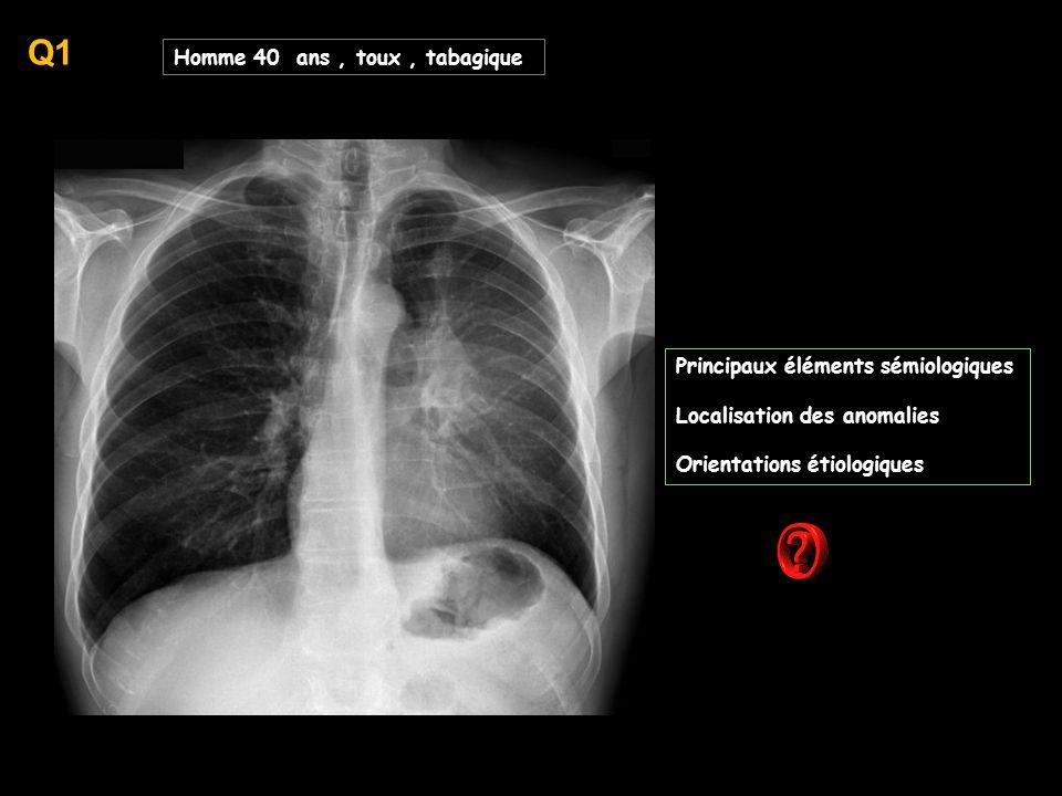 -hypertransparence des 2 lobes inférieurs -inflation aérique dans ces 2 lobes inférieurs ( canvexité scissurale ) un scanner est réalisé ; décrire les principales anomalies visibles et proposez un éventail diagnostique,tenant compte du contexte -emphysème lobaire géant -Swyer-James -BPCO -asbestose -emphysème --asthme --bronchiolite oblitérante