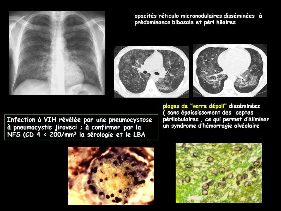 opacités réticulo micronodulaires disséminées à prédominance bibasale et péri hilaires plages de ''verre dépoli'' disséminées ( sans épaississement des septas périlobulaires, ce qui permet d'éliminer un syndrome d'hémorragie alvéolaire Infection à VIH révélée par une pneumocystose à pneumocystis jiroveci ; à confirmer par la NFS (CD 4 < 200/mm 3 la sérologie et le LBA