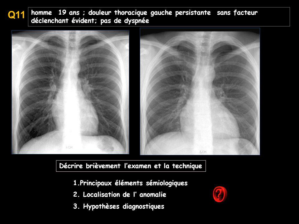 homme 19 ans ; douleur thoracique gauche persistante sans facteur déclenchant évident; pas de dyspnée 1.Principaux éléments sémiologiques 2.