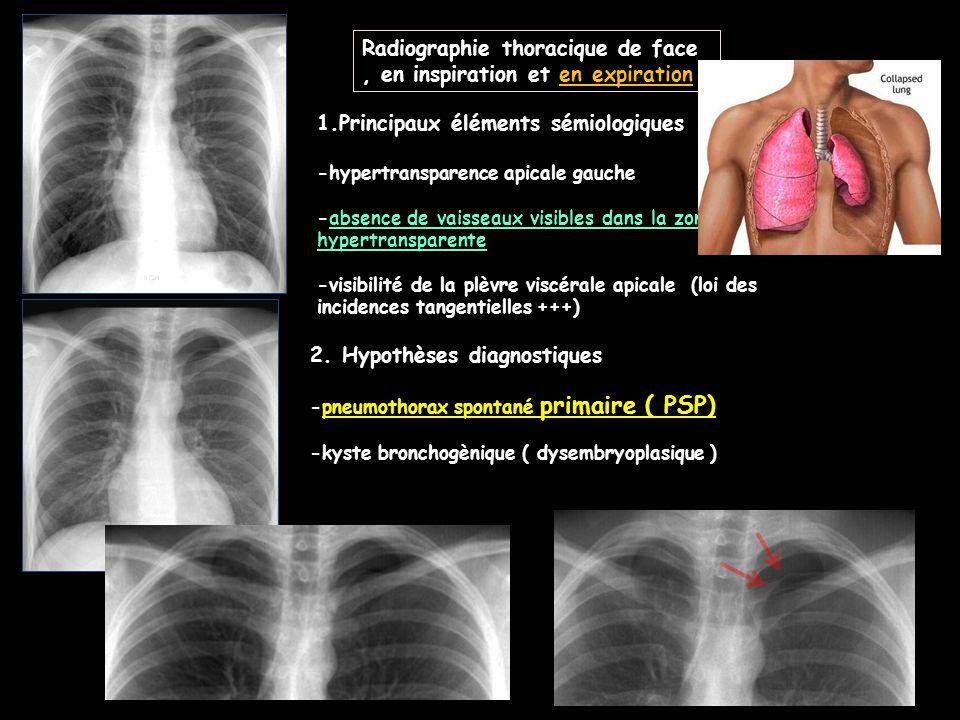 1.Principaux éléments sémiologiques -hypertransparence apicale gauche -absence de vaisseaux visibles dans la zone hypertransparente -visibilité de la plèvre viscérale apicale (loi des incidences tangentielles +++) 2.