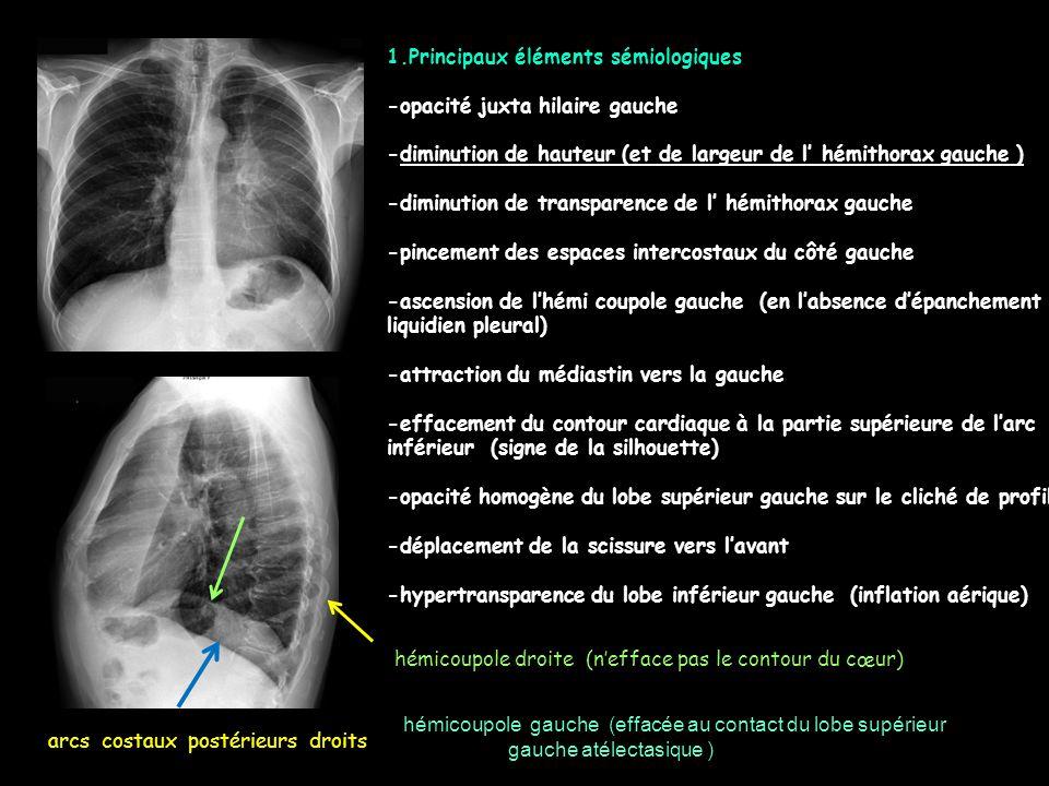 1.Principaux éléments sémiologiques -masse,a priori unique, intraparenchymateuse,du LIG (signe de la silhouette avec le bord gauche du cœur ), de densité homogène -contours réguliers ; pas de troubles de la ventilation, pas de réaction liquidienne pleurale -au scanner ( même injecté ) la ''densité'' intralésionnelle est plus faible que celle des muscles ( et du foie), ce qui est en faveur d'une lésion kystique 3.