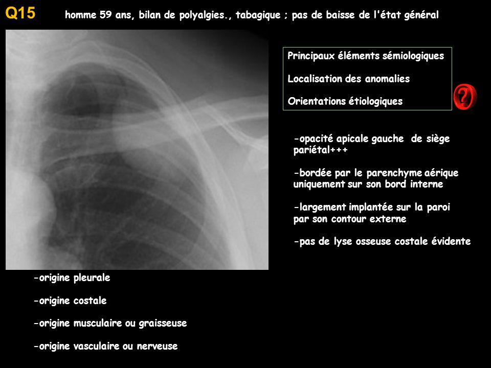 homme 59 ans, bilan de polyalgies., tabagique ; pas de baisse de l état général Principaux éléments sémiologiques Localisation des anomalies Orientations étiologiques -opacité apicale gauche de siège pariétal+++ -bordée par le parenchyme aérique uniquement sur son bord interne -largement implantée sur la paroi par son contour externe -pas de lyse osseuse costale évidente -origine pleurale -origine costale -origine musculaire ou graisseuse -origine vasculaire ou nerveuse Q15