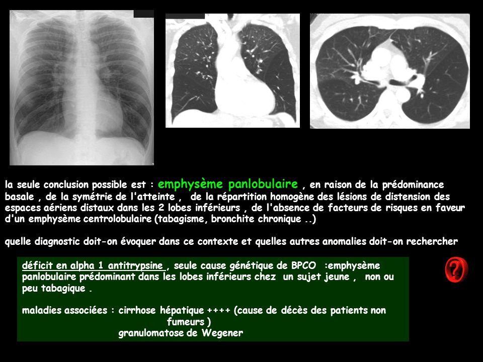 la seule conclusion possible est : emphysème panlobulaire, en raison de la prédominance basale, de la symétrie de l atteinte, de la répartition homogène des lésions de distension des espaces aériens distaux dans les 2 lobes inférieurs, de l absence de facteurs de risques en faveur d un emphysème centrolobulaire (tabagisme, bronchite chronique..) quelle diagnostic doit-on évoquer dans ce contexte et quelles autres anomalies doit-on rechercher déficit en alpha 1 antitrypsine, seule cause génétique de BPCO :emphysème panlobulaire prédominant dans les lobes inférieurs chez un sujet jeune, non ou peu tabagique.