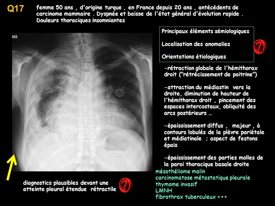 Q17 femme 50 ans, d origine turque, en France depuis 20 ans, antécédents de carcinome mammaire.