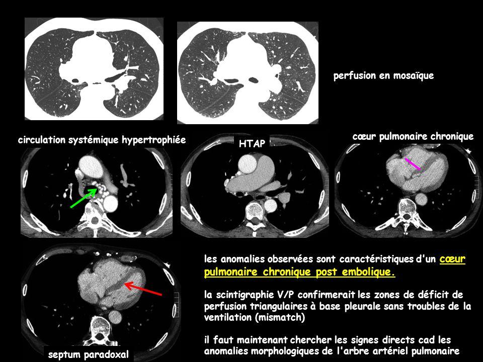 perfusion en mosaïque HTAP cœur pulmonaire chronique septum paradoxal circulation systémique hypertrophiée les anomalies observées sont caractéristiques d un cœur pulmonaire chronique post embolique.