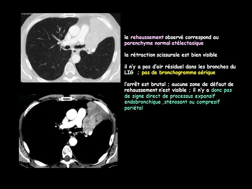 quelles sont les causes possibles d'une atélectasie complète chez un adulte, chez un enfant -cancer bronchique primitif proximal (bronche souche, lobaire, segmentaire);le plus fréquemment carcinome épidermoïde +++, ou CPC avec compression extrinsèque par les adénopathies.