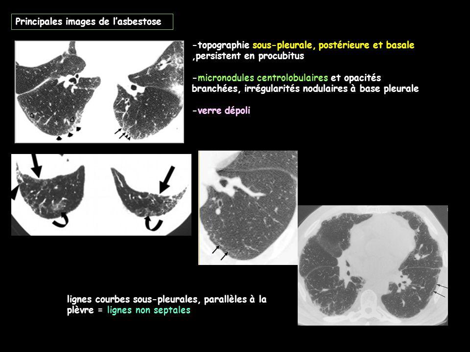 Principales images de l'asbestose -topographie sous-pleurale, postérieure et basale,persistent en procubitus -micronodules centrolobulaires et opacités branchées, irrégularités nodulaires à base pleurale -verre dépoli lignes courbes sous-pleurales, parallèles à la plèvre = lignes non septales