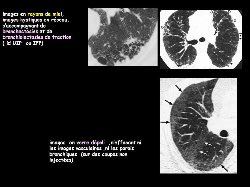 images en rayons de miel, images kystiques en réseau, s'accompagnant de bronchectasies et de bronchiolectasies de traction ( id UIP ou IFP) images en verre dépoli ;n'effacent ni les images vasculaires,ni les parois bronchiques (sur des coupes non injectées)