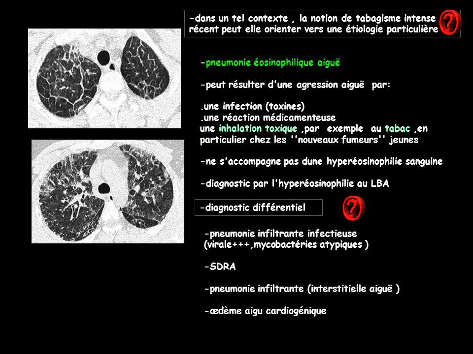 -pneumonie éosinophilique aiguë -peut résulter d une agression aiguë par:.une infection (toxines).une réaction médicamenteuse une inhalation toxique,par exemple au tabac,en particulier chez les nouveaux fumeurs jeunes -ne s accompagne pas dune hyperéosinophilie sanguine -diagnostic par l hyperéosinophilie au LBA -dans un tel contexte, la notion de tabagisme intense récent peut elle orienter vers une étiologie particulière -diagnostic différentiel -pneumonie infiltrante infectieuse (virale+++,mycobactéries atypiques ) -SDRA -pneumonie infiltrante (interstitielle aiguë ) -œdème aigu cardiogénique