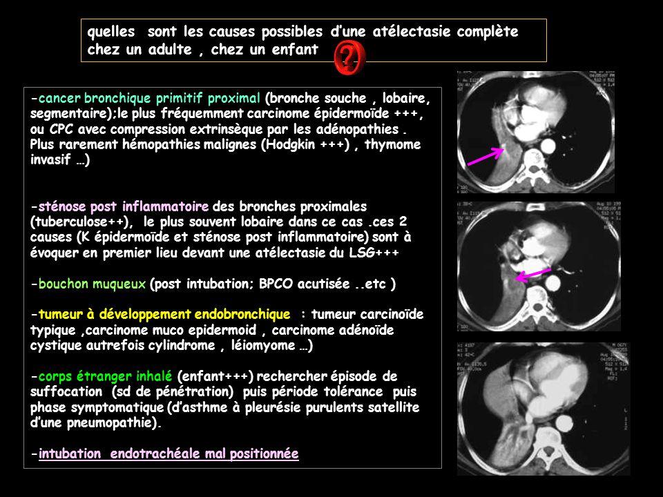 Présence de lésions nodulaires (≠ miliaires ) cérébrales Ceci est une tuberculose nodulaire (et bronchique ) mais ce n'est pas une miliaire .
