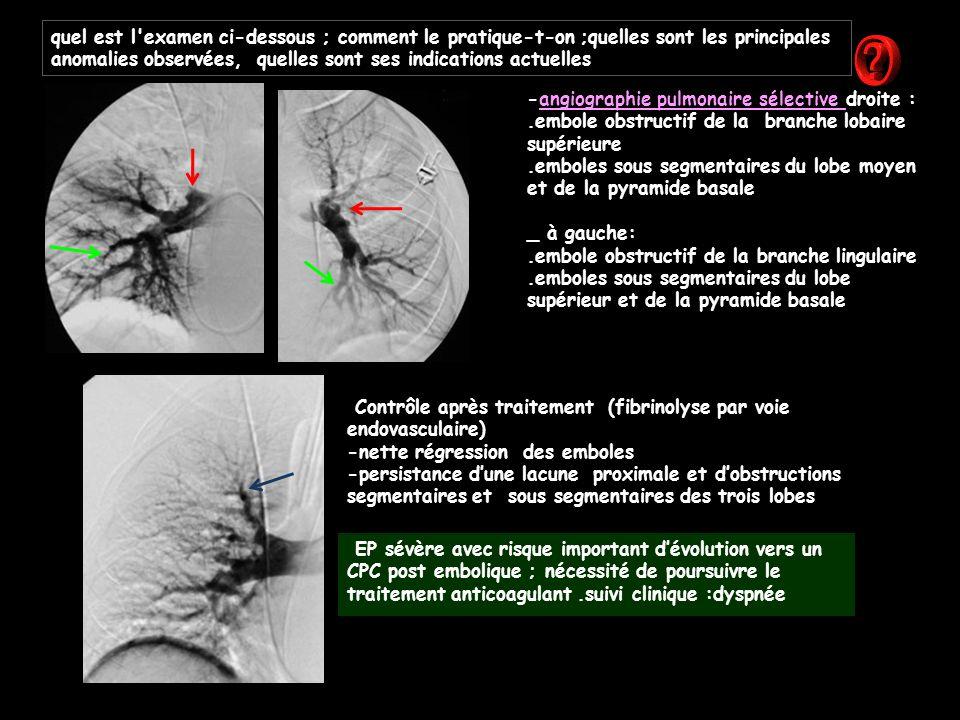 -angiographie pulmonaire sélective droite :.embole obstructif de la branche lobaire supérieure.emboles sous segmentaires du lobe moyen et de la pyramide basale _ à gauche:.embole obstructif de la branche lingulaire.emboles sous segmentaires du lobe supérieur et de la pyramide basale Contrôle après traitement (fibrinolyse par voie endovasculaire) -nette régression des emboles -persistance d'une lacune proximale et d'obstructions segmentaires et sous segmentaires des trois lobes EP sévère avec risque important d'évolution vers un CPC post embolique ; nécessité de poursuivre le traitement anticoagulant.suivi clinique :dyspnée quel est l examen ci-dessous ; comment le pratique-t-on ;quelles sont les principales anomalies observées, quelles sont ses indications actuelles