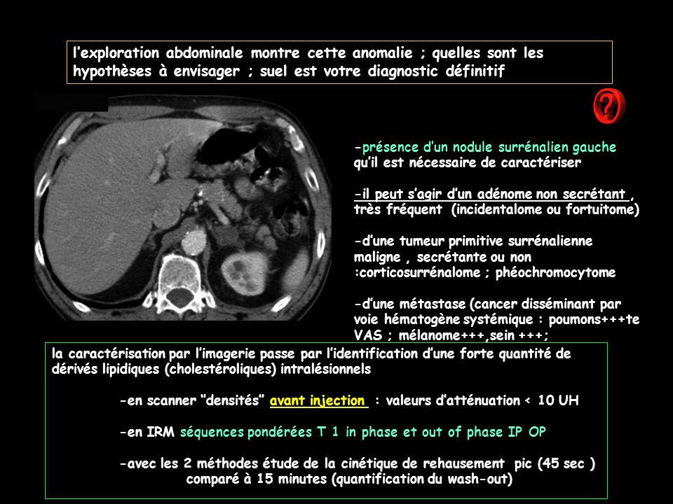 l'exploration abdominale montre cette anomalie ; quelles sont les hypothèses à envisager ; suel est votre diagnostic définitif -présence d'un nodule surrénalien gauche qu'il est nécessaire de caractériser -il peut s'agir d'un adénome non secrétant, très fréquent (incidentalome ou fortuitome) -d'une tumeur primitive surrénalienne maligne, secrétante ou non :corticosurrénalome ; phéochromocytome -d'une métastase (cancer disséminant par voie hématogène systémique : poumons+++te VAS ; mélanome+++,sein +++; la caractérisation par l'imagerie passe par l'identification d'une forte quantité de dérivés lipidiques (cholestéroliques) intralésionnels -en scanner ''densités'' avant injection : valeurs d'atténuation < 10 UH -en IRM séquences pondérées T 1 in phase et out of phase IP OP -avec les 2 méthodes étude de la cinétique de rehausement pic (45 sec ) comparé à 15 minutes (quantification du wash-out)