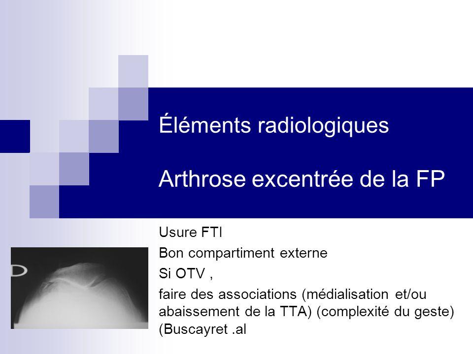 Éléments radiologiques Arthrose excentrée de la FP Usure FTI Bon compartiment externe Si OTV, faire des associations (médialisation et/ou abaissement