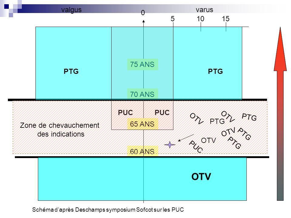 60 ANS 0 varusvalgus 51015 65 ANS 70 ANS 75 ANS PTG PUC OTV Schéma d'après Deschamps symposium Sofcot sur les PUC Zone de chevauchement des indication