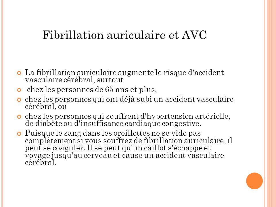 Fibrillation auriculaire et AVC La fibrillation auriculaire augmente le risque d'accident vasculaire cérébral, surtout chez les personnes de 65 ans et