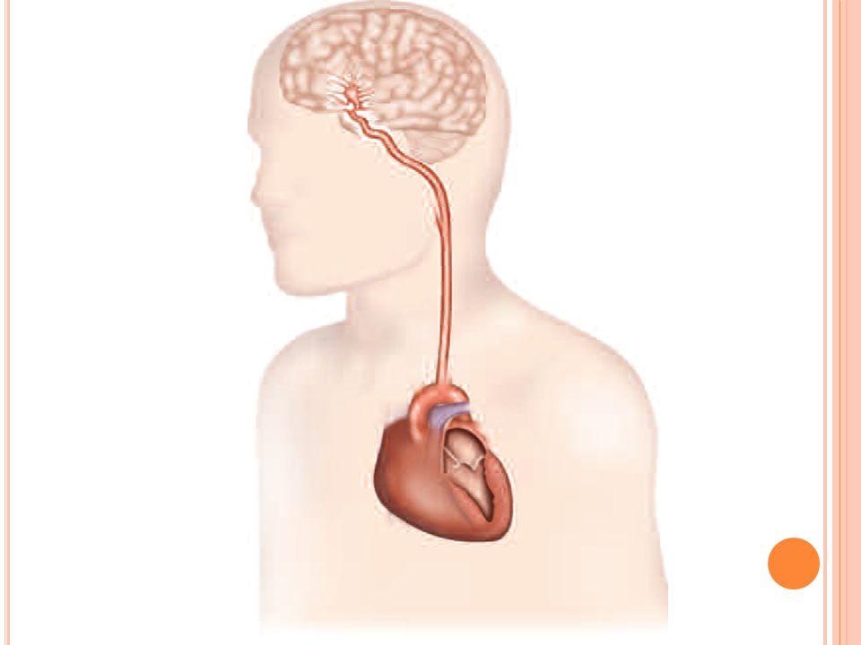 AVC Causes cardiaques Fibrillation auriculaire permanente ou paroxystique Valvulopathie mitrale Prothèse valvulaire cardiaque Infarctus du myocarde Foramen Ovale perméable