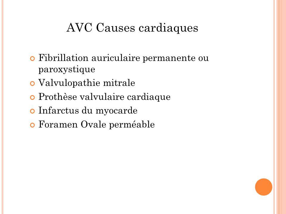AVC Causes cardiaques Fibrillation auriculaire permanente ou paroxystique Valvulopathie mitrale Prothèse valvulaire cardiaque Infarctus du myocarde Fo