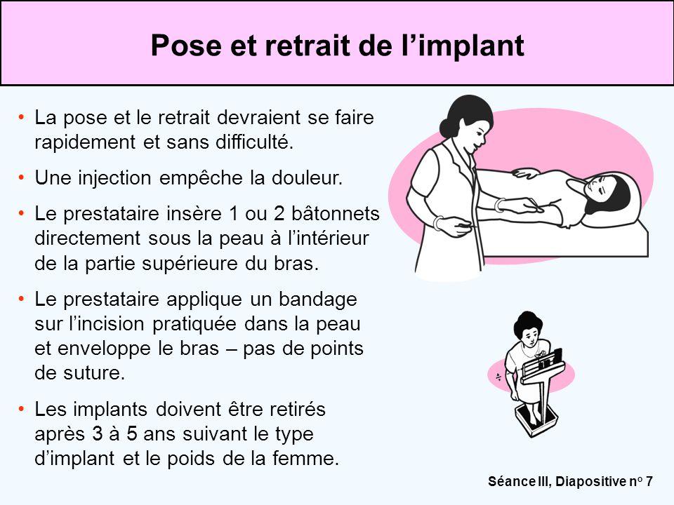 Séance III, Diapositive n o 7 La pose et le retrait devraient se faire rapidement et sans difficulté. Une injection empêche la douleur. Le prestataire